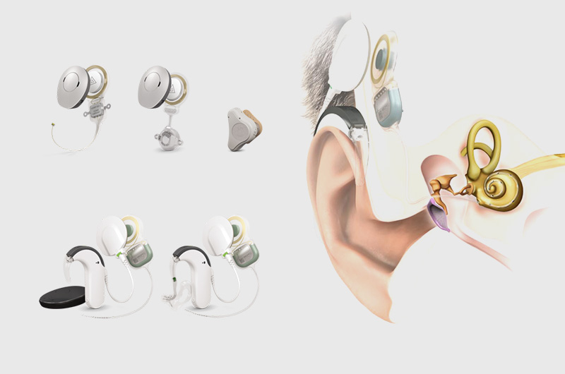 Hearing Implant